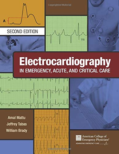 Compare Textbook Prices for Electrocardiography in Emergency, Acute, and Critical Care 2nd Edition ISBN 9781732748606 by Amal Mattu, MD, FACEP,Jeffrey A. Tabas, MD, FACEP,William Brady, MD, FACEP, FAAEM