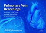 Pulmonary Vein Recordings: A Practical Guide to the Mapping & Ablation of Atrial Fibrillation