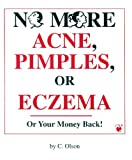 No More Acne, Pimples or Eczema: How to cure your skin or your money back