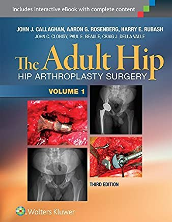 The Adult Hip (Two Volume Set): Hip Arthroplasty Surgery by LWW (2015-10-28)