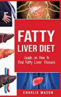 Fatty Liver Diet: Guide on How to End Fatty Liver Disease Fatty Liver Diet Books: Fatty Liver Diet