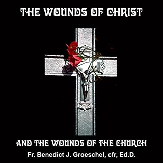 The Wounds of Christ audiobook cover art