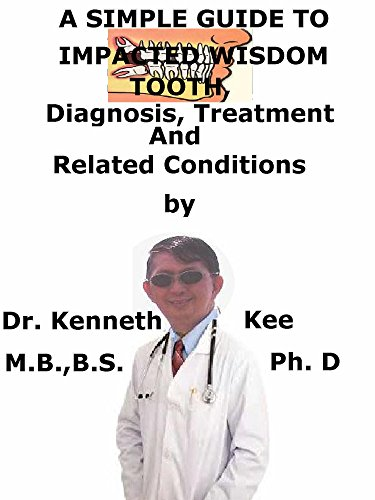 A  Simple  Guide  To  Impacted Wisdom Tooth,  Diagnosis, Treatment  And  Related Conditions (A Simple Guide to Medical Conditions) (English Edition)