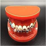 LUCKFY Dental Typodont con Mental attacchi ortodontici Denti Modello con Legature Ties Red dimostrazione ortodontico Girl Strumenti Teach di Studio per Lo Studio l'insegnamento