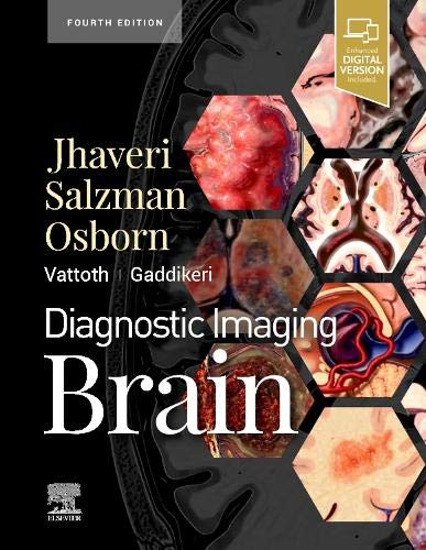 Compare Textbook Prices for Diagnostic Imaging: Brain 4 Edition ISBN 9780323756204 by Jhaveri MD, Miral D.