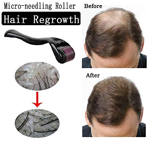 ZZSNT Hair Regrowth Activating Roller, Micro-needling Roller Beard Growth Product Anti Hair Loss