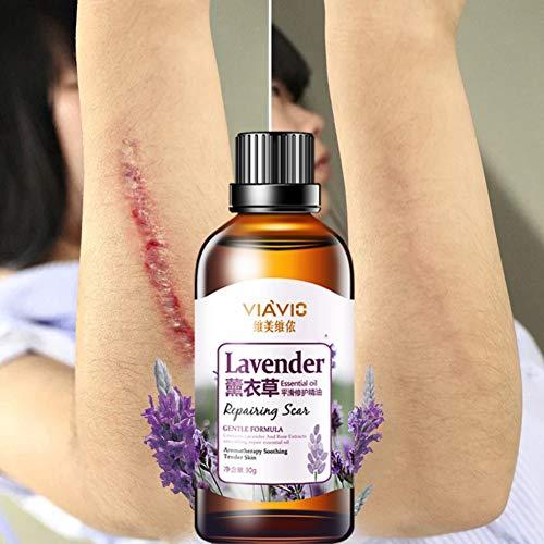 Symeas Scar Repair Skin Huile Essentielle Lavender Essence Soins De La Peau Naturel Pure Enlève Ance Burn Strentch Marks Enlèvement De Cicatrice