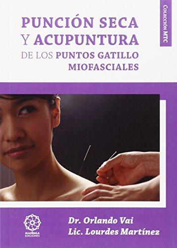 punción seca y acupuntura de Los puntos gatillo Miofasciales (Mtc)