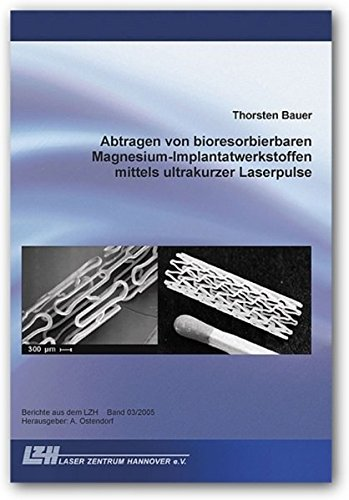 Abtragen von bioresorbierbaren Magnesium-Implantatwerkstoffen mittels ultrakurzer Laserpulse (Berichte aus dem LZH)