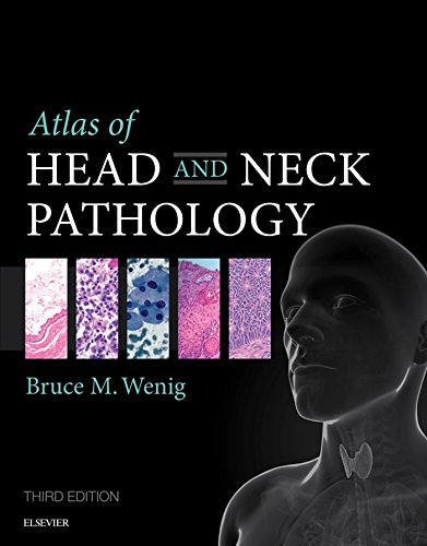 Atlas of Head and Neck Pathology E-Book (ATLAS OF SURGICAL PATHOLOGY) (English Edition)