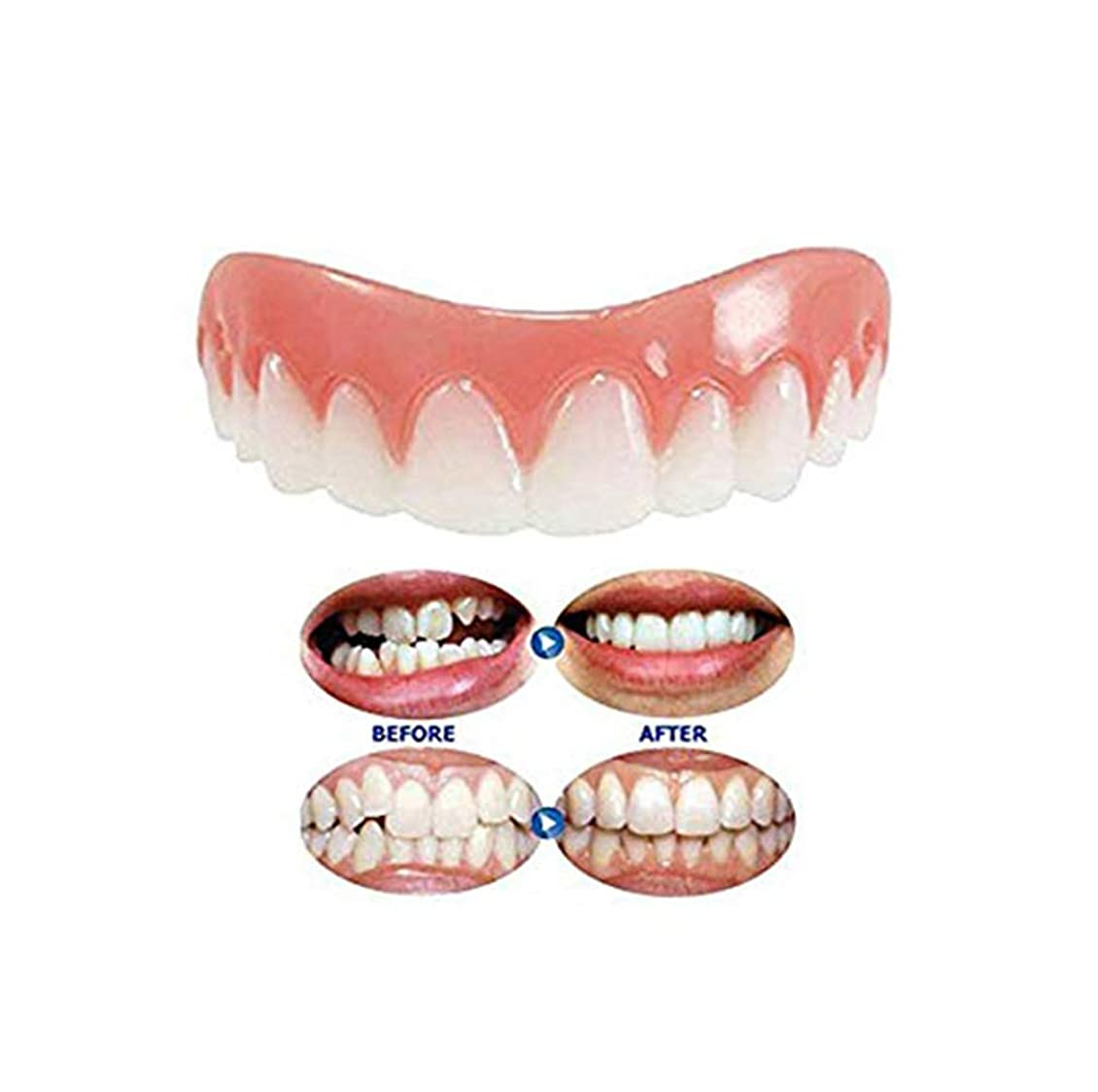 吸う韻慣れる一時的な義歯床義歯の歯のホワイトニング化粧品歯科ベニアパーフェクトスマイルインスタントスマイル歯科快適なトップベニア化粧品