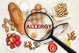 Lebensmittelunverträglichkeit Test Haaranalyse - Nahrungsmittelintoleranzen und -unverträglichkeiten, Schwermetalle in den Haaren testen | 600 Lebensmittel & Nichtlebensmittel