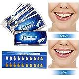 Teeth Whitening White Stripes 28 Professional Whitening Teeth Whitening Teeth Strips Family Whitening