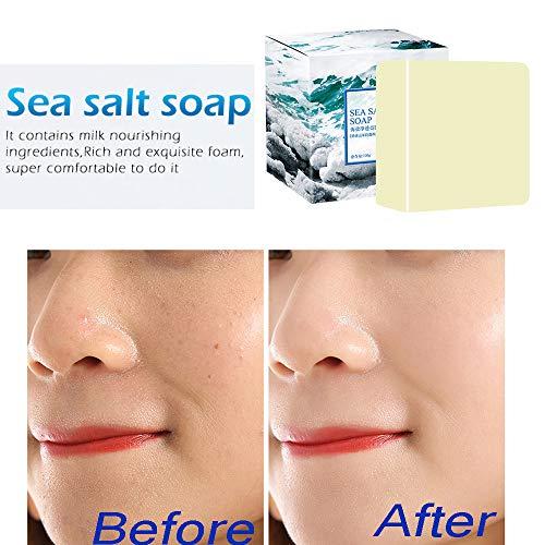 Wankd Sea Salt zeep, acnezeep, handgemaakte zeep, natuurlijke zeep, gezichtszeep, reinigt gezicht en lichaam voor alle huidtypes, voor acne, eczeem, gelaatsreiniging behandeling voor acne en kroon huid