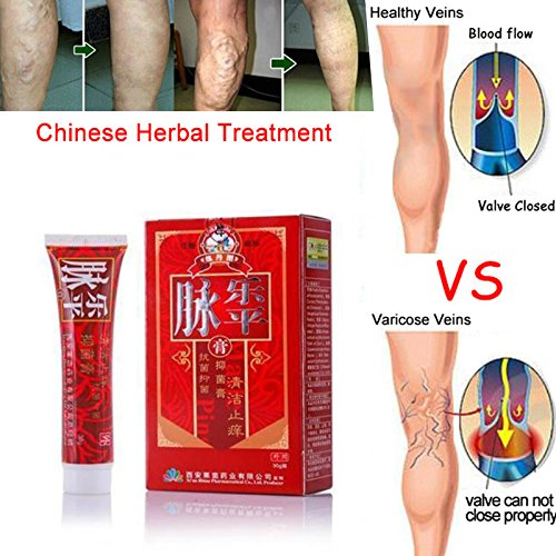 Cutogain Varicose Veins Cream Relief Phlebitis Angiitis Inflammation Blood Vessel Health Care