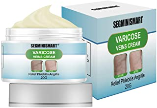 Best varicose veins treatment cream avis Reviews