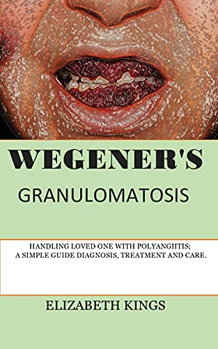 WEGENER'S GRANULOMATOSIS: HANDLING LOVED ONE WITH POLYANGIITIS; A SIMPLE GUIDE DIAGNOSIS, TREATMENT AND CARE. (English Edition)