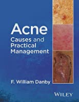 Acne: Causes and Practical Management
