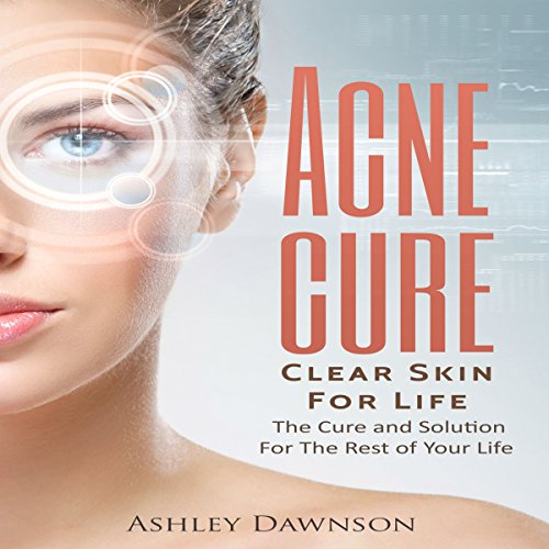Acne Cure Clear Skin for Life audiobook cover art