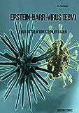 Epstein-Barr-Virus (EBV): Leben mit dem Virus! Ein Leitfaden.