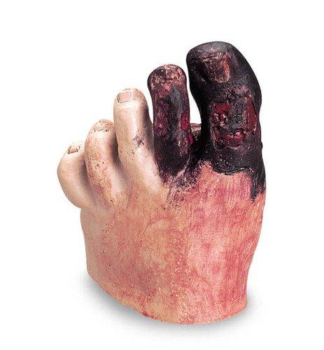 Diabetes Fuß