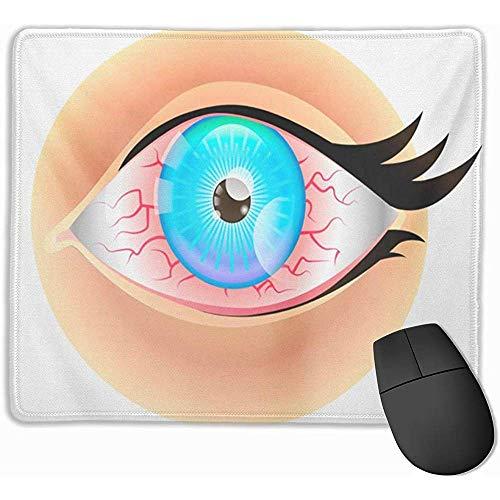 Cute Gaming Mouse Pad, Mouse Mat Azul Seco Ojos Rojos Irritado Alergia Infección Triste Hermoso Negro Sangre