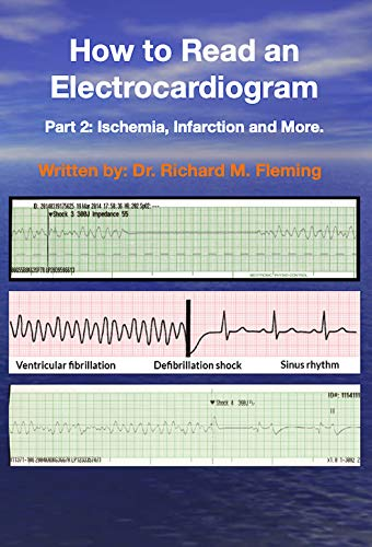How to Read an Electrocardiogram: Part 2: Ischemia, Infarction and More. (How to Read an Electrocardiogram.) (English Edition)
