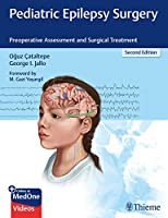 Pediatric Epilepsy Surgery: Preoperative Assessment and Surgical Treatment