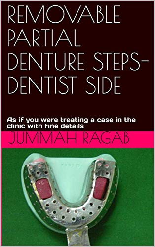 REMOVABLE PARTIAL DENTURE STEPS-DENTIST SIDE: As if you were treating a case in the clinic with fine details (English Edition)