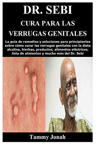 Dr. Sebi Cura para las verrugas genitales: La guía de remedios y...