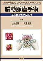 脳動脈瘤手術