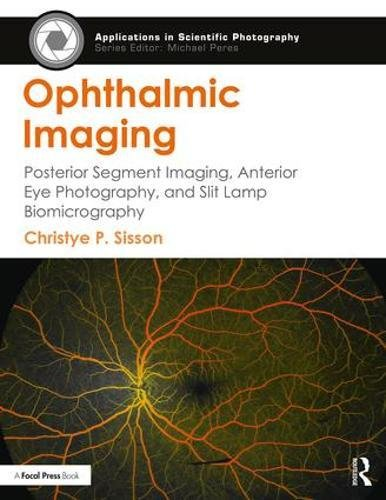 Ophthalmic Imaging: Posterior Segment Imaging, Anterior Eye Photography, and Slit Lamp Biomicrography (Applications in Scientific Photography)