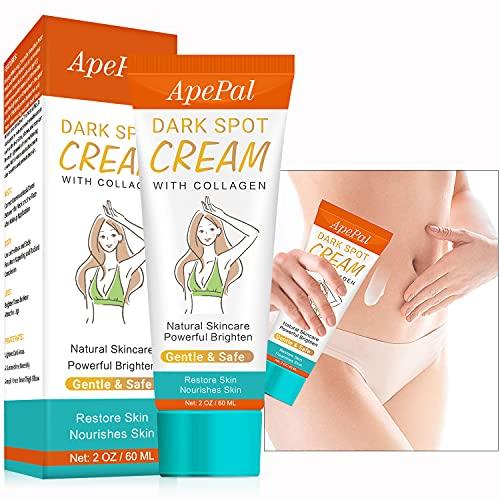 Dark Spot Cream Natural Underarm Cream, Instant Result, for Armpit, Elbow, Knee, Crotch & Nipple Dark Spot Corrector (2oz)