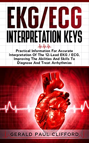 EKG/ECG Interpretation Keys: Practical Information For Accurate Interpretation Of The 12-Lead EKG /