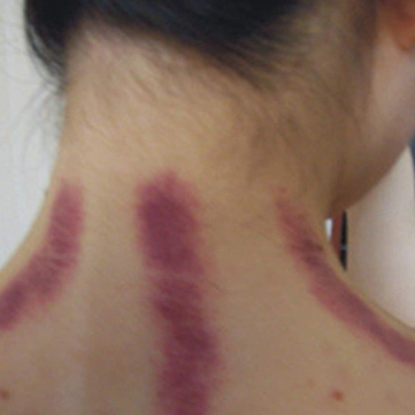 メダルチャンバー分離するCompact Size Gua Sha Facial Treatment Massage Tool Imitation horn scraping