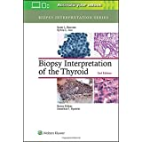 Biopsy Interpretation of the Thyroid (Biopsy Interpretation Series)