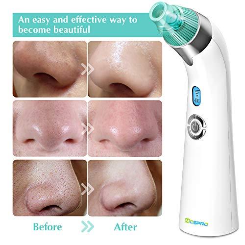 Mospro Blackhead Remover Vacuum Pore Cleaner
