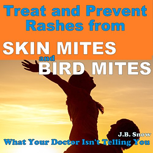 Treat and Prevent Rashes from Skin Mites and Bird Mites audiobook cover art