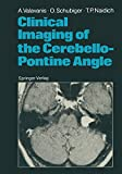 Clinical Imaging of the Cerebello-Pontine Angle (English Edition)