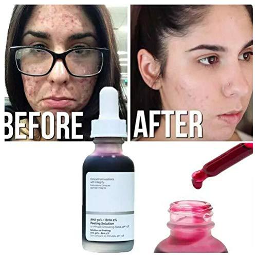 30ml AHA 30% + BHA 2% Peeling Solution 10-Minute Exfoliating Face Brighten Serum Face Skin Care