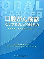 口腔がん検診 どうするの、どう診るの―早期発見・早期治療を目指して