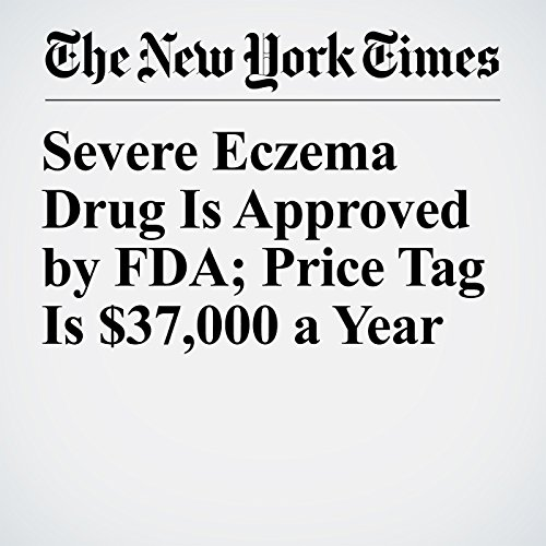 Severe Eczema Drug Is Approved by FDA; Price Tag Is $37,000 a Year copertina
