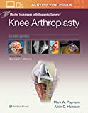 Knee Arthroplasty (Master Techniques in Orthopaedic Surgery) - Mark W., M.D. Pagnano