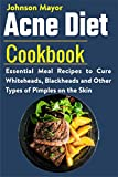 Acne Diet Cookbook: Essential Meal Recipes to Cure Whiteheads, Blackheads and Other Types of Pimples on the Skin (English Edition)