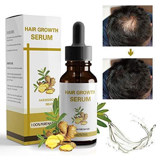 Haarwuchs-Serum, Haarwuchs-Behandlung, Anti-Haarausfall Haar-Serum, Fördert das Nachwachsen der Haare, Haarwuchsöl für Trockenes und Geschädigtes Haar, Haarserum für Haarwachstum Beschleunigen-60ml