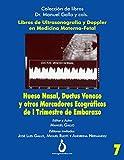 Hueso Nasal, Ductus Venoso y otros marcadores ecográficos de I trimestre de...