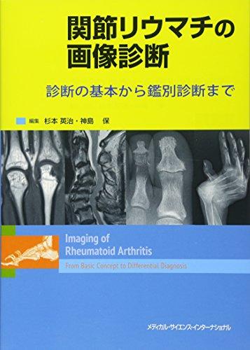 関節リウマチの画像診断 診断の基本から鑑別診断まで