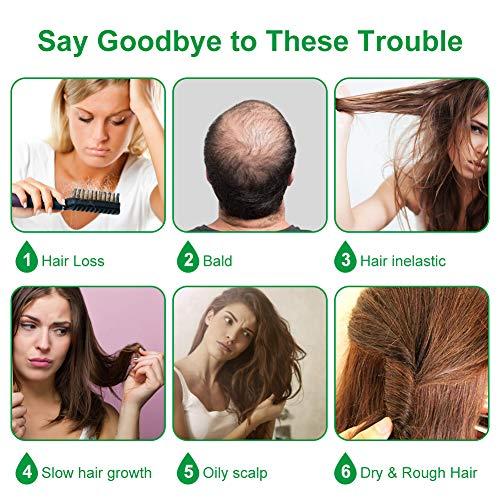 Aceite germinal de jengibre, suero de crecimiento de cabello de jengibre, aceite esencial de jengibre para detener la pérdida de cabello, tratamiento de adelgazamiento, aceite de crecimiento de cabello para mujeres y hombres 1.0fl oz (paquete de 3)