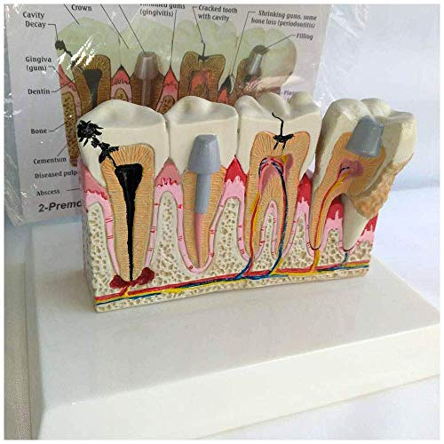Modelo Educativo Modelo de Dientes dentales - Caries Dental Modelo...