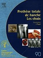 Prothèse totale de hanche - Les choix de Jean Puget